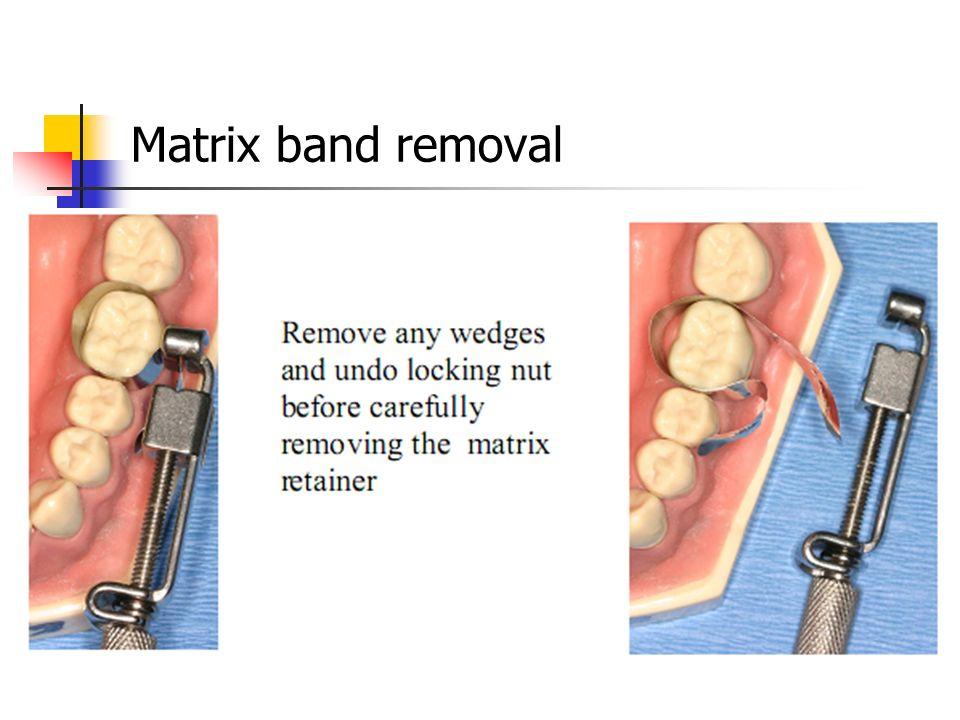 Matrix band removal