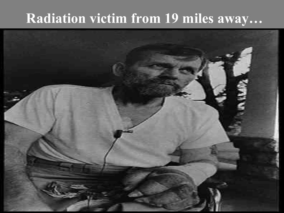 Radiation victim from 19 miles away…