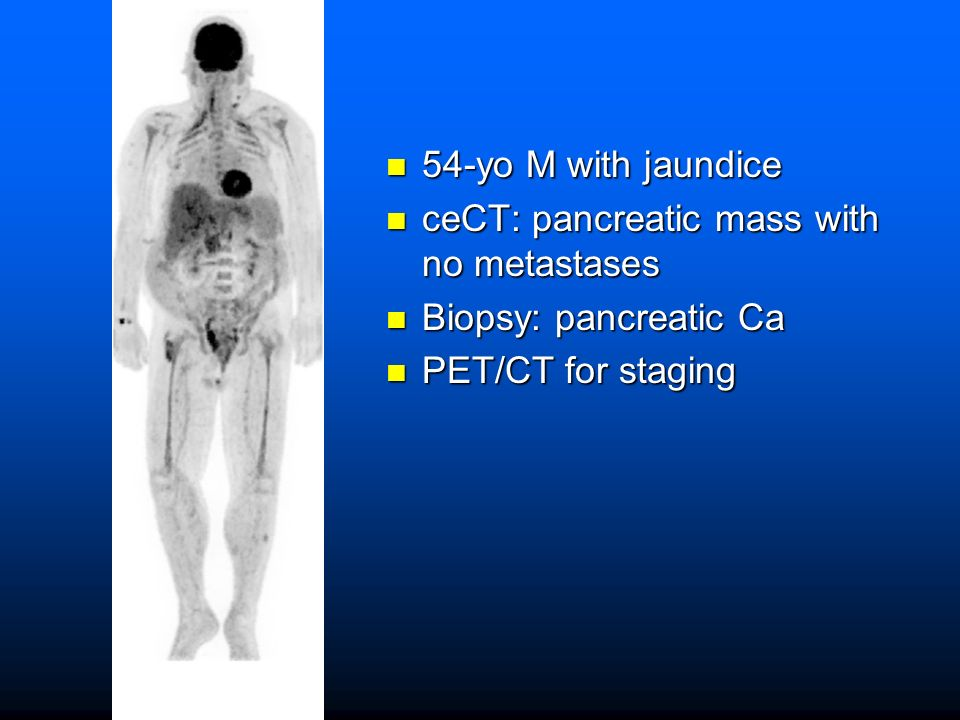 54-yo M with jaundice ceCT: pancreatic mass with no metastases Biopsy: pancreatic Ca PET/CT for staging