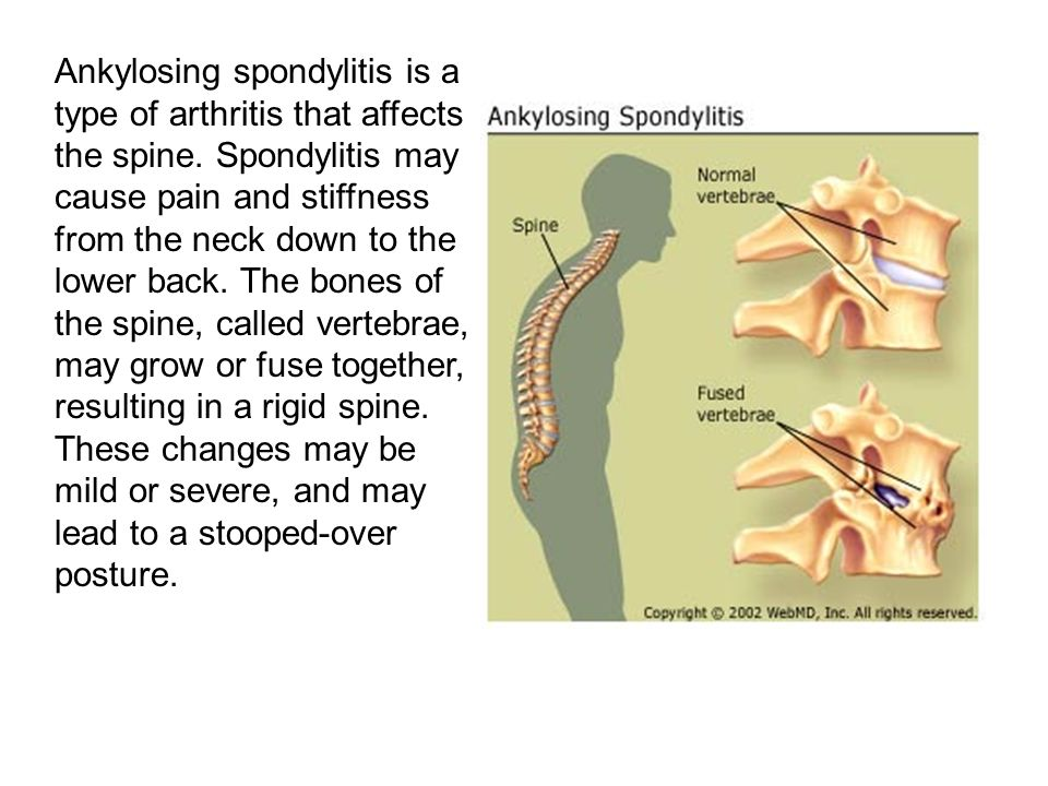 Ankylosing spondylitis is a type of arthritis that affects the spine.