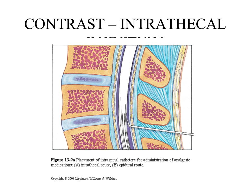 CONTRAST – INTRATHECAL INJECTION