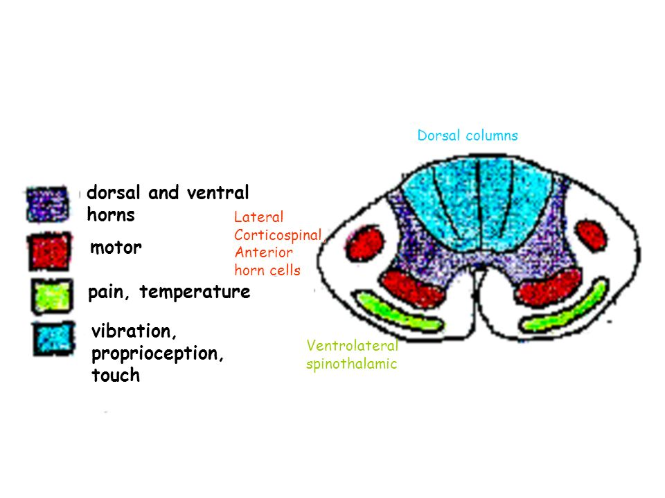 dorsal and ventral horns motor pain, temperature vibration, proprioception, touch Dorsal columns Ventrolateral spinothalamic Lateral Corticospinal, Anterior horn cells