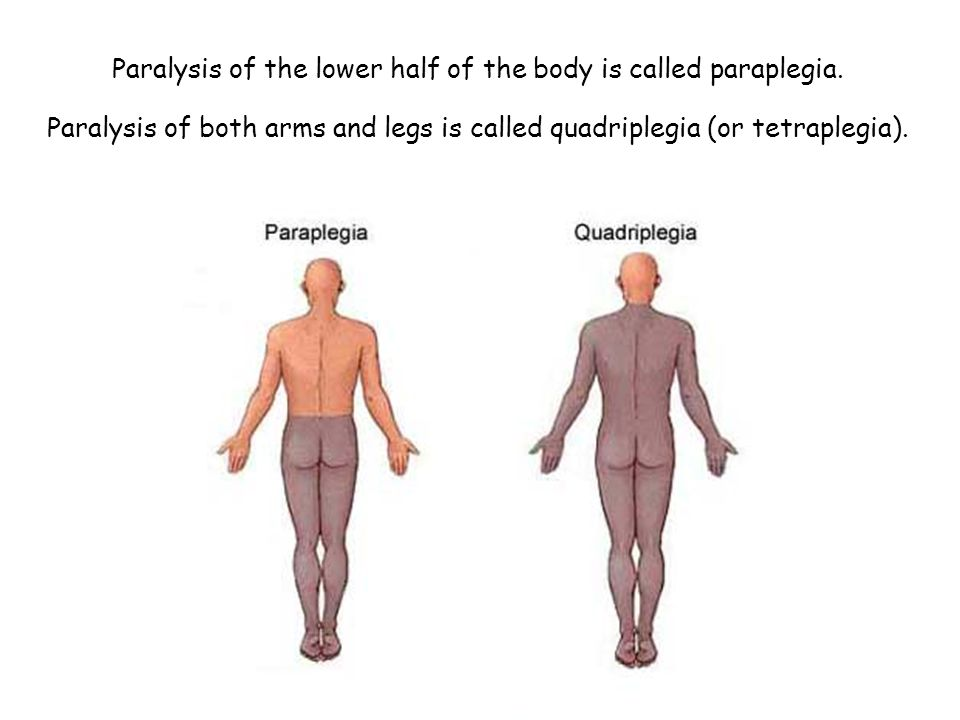 Paralysis of the lower half of the body is called paraplegia.
