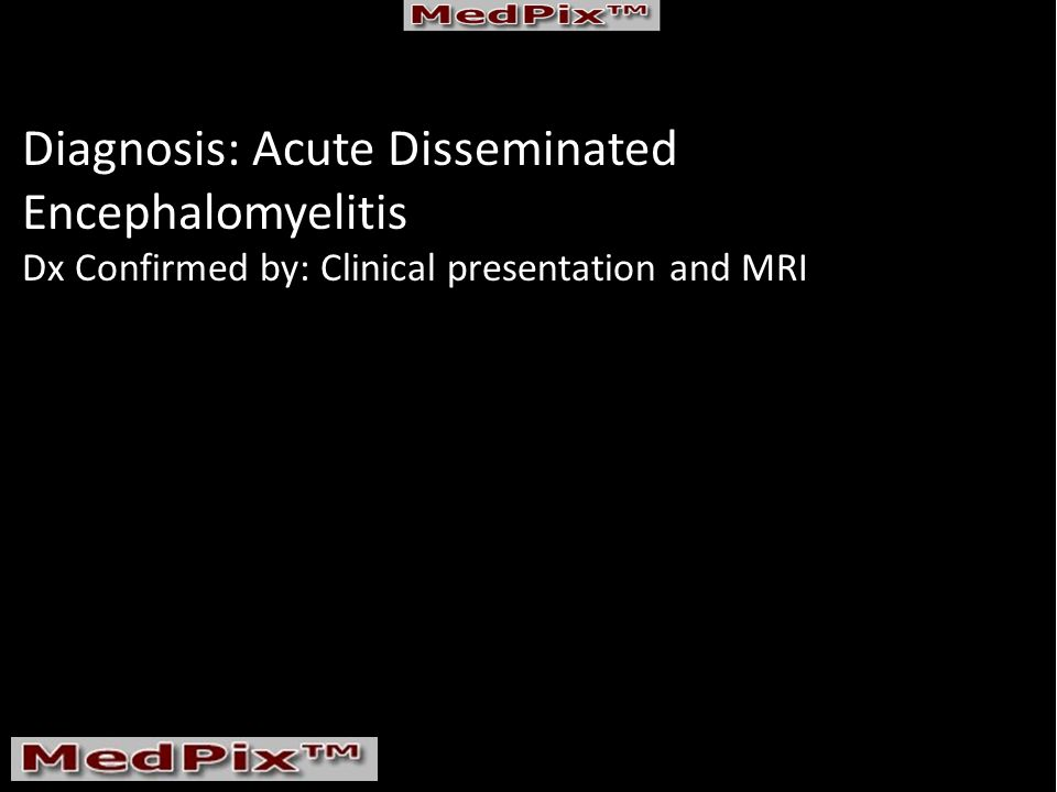 Diagnosis: Acute Disseminated Encephalomyelitis Dx Confirmed by: Clinical presentation and MRI