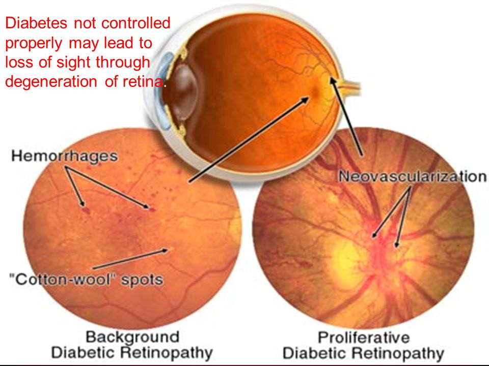Diabetes not controlled properly may lead to loss of sight through degeneration of retina.