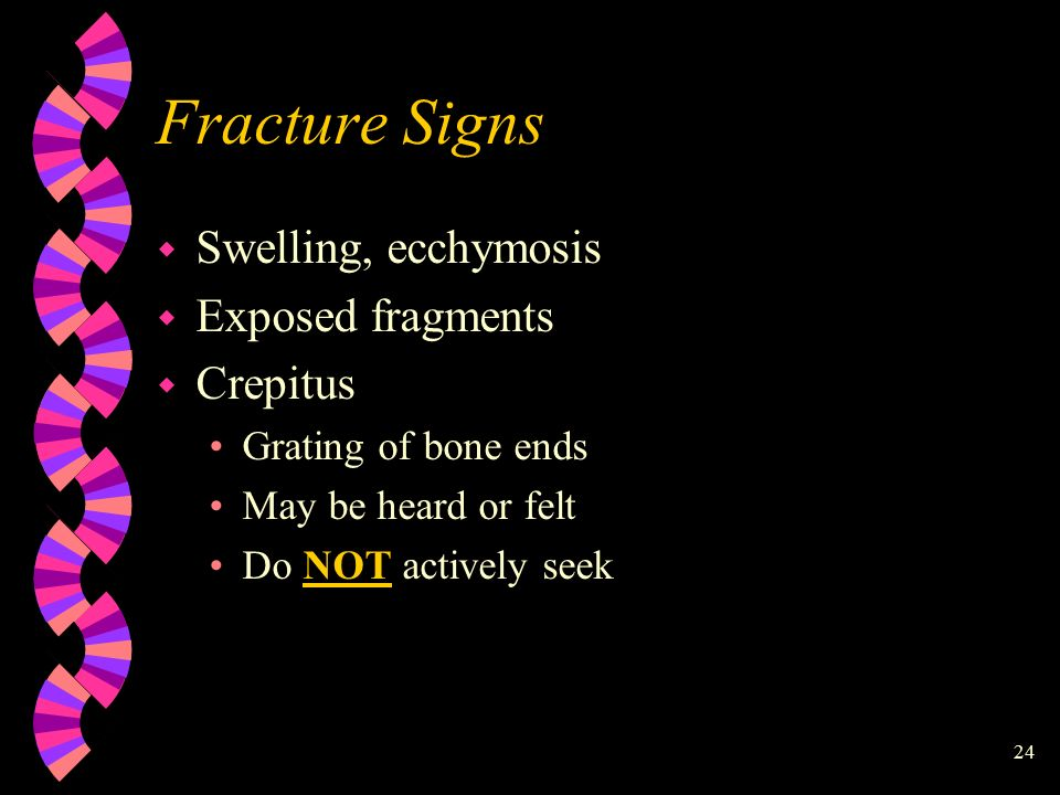 24 Fracture Signs w Swelling, ecchymosis w Exposed fragments w Crepitus Grating of bone ends May be heard or felt Do NOT actively seek