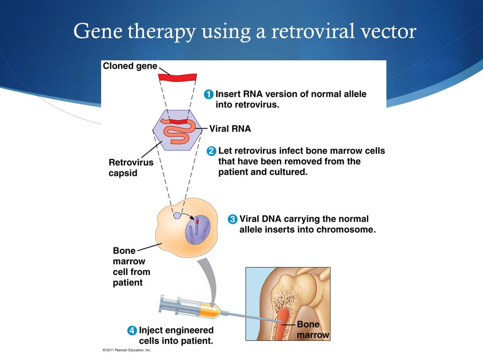 Gene therapy using a retroviral vector