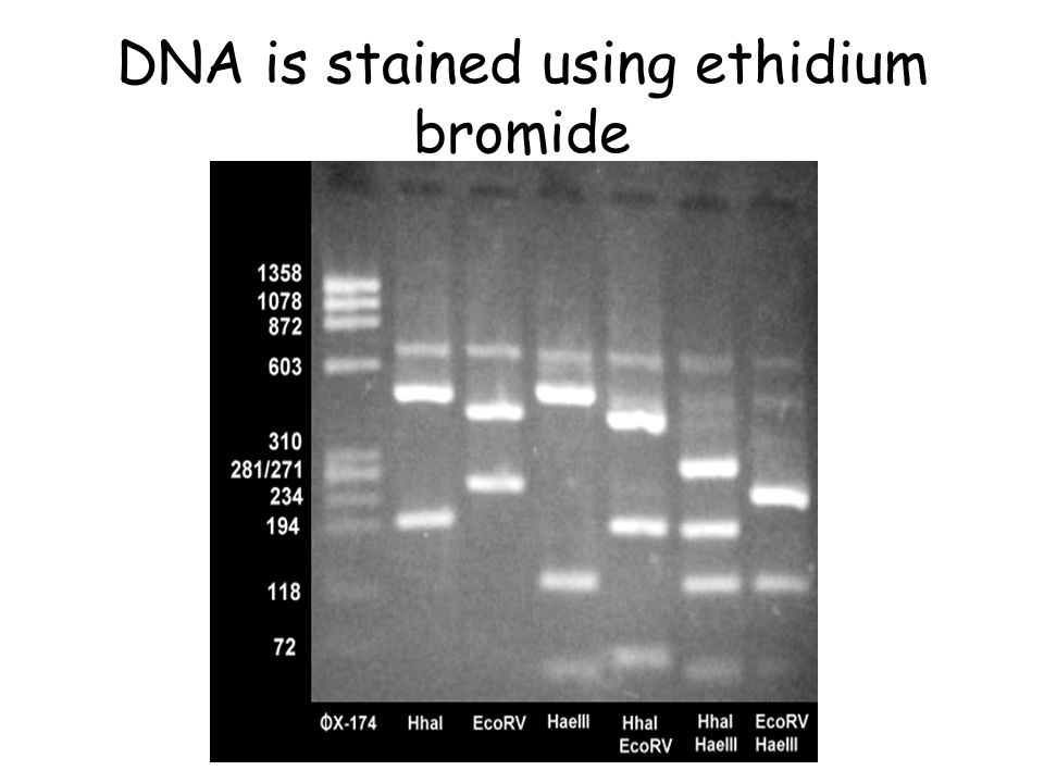 DNA is stained using ethidium bromide