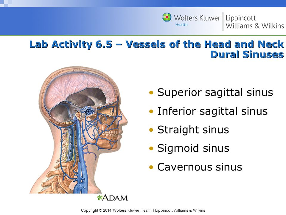 Copyright © 2014 Wolters Kluwer Health | Lippincott Williams & Wilkins Lab Activity 6.5 – Vessels of the Head and Neck Dural Sinuses Superior sagittal