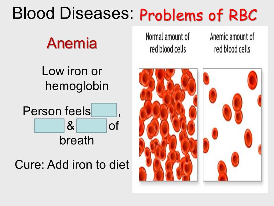 Blood Diseases: Problems of RBC Anemia Low iron or hemoglobin Person feels tired, weak & short of breath Cure: Add iron to diet