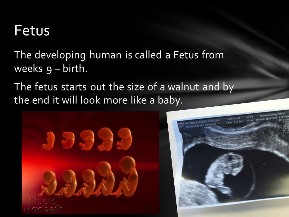 The developing human is called a Fetus from weeks 9 – birth.