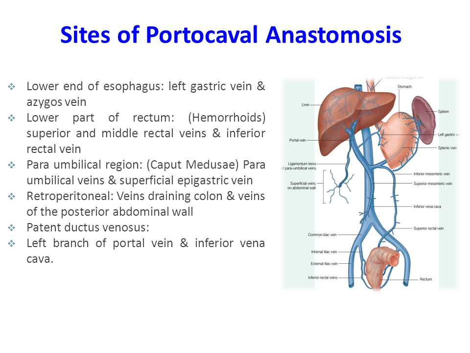 Sites of Portocaval Anastomosis  Lower end of esophagus: left gastric vein & azygos vein  Lower part of rectum: (Hemorrhoids) superior and middle re