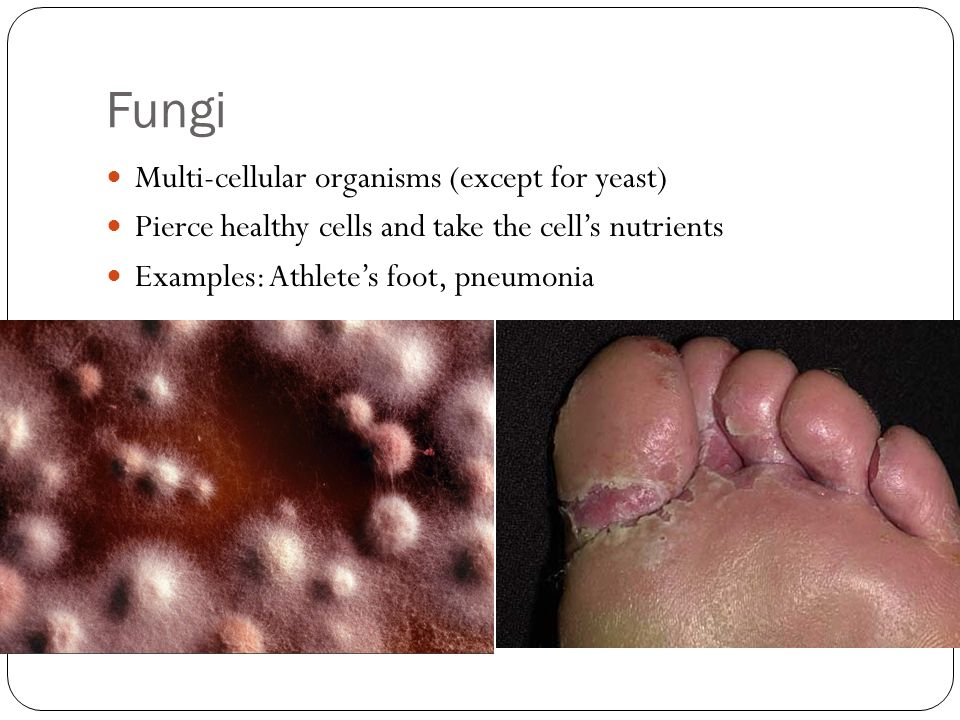 Fungi Multi-cellular organisms (except for yeast) Pierce healthy cells and take the cell's nutrients Examples: Athlete's foot, pneumonia