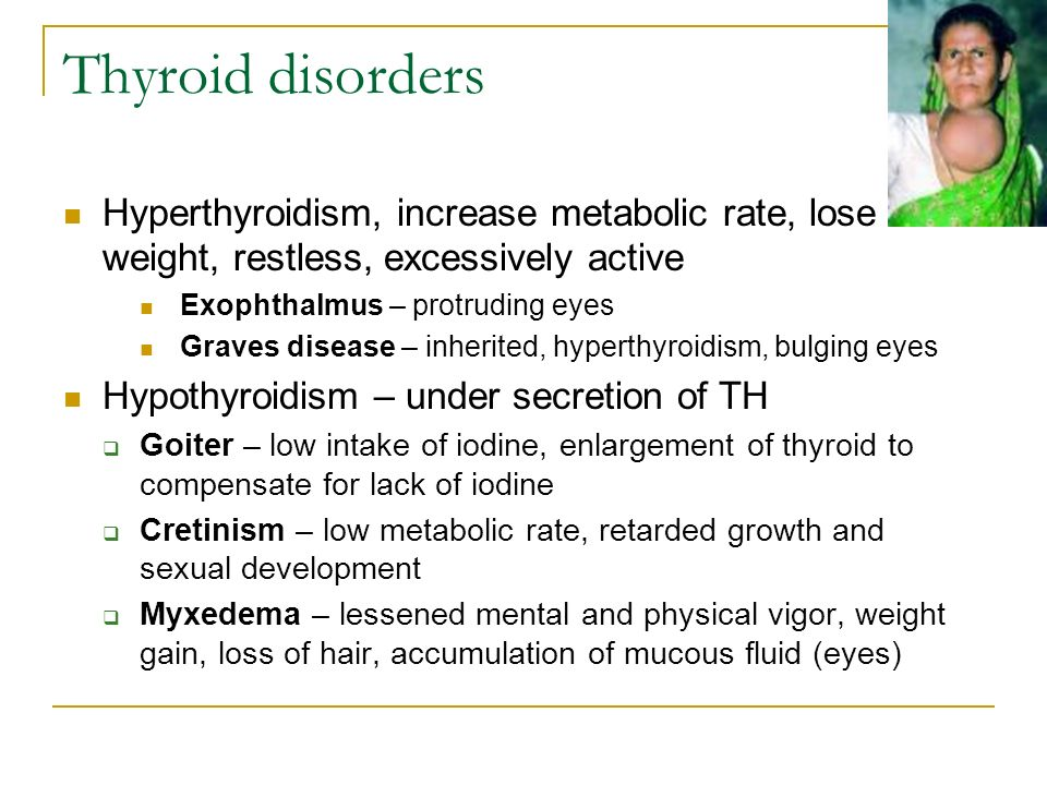 Thyroid disorders Hyperthyroidism, increase metabolic rate, lose weight, restless, excessively active Exophthalmus – protruding eyes Graves disease – inherited, hyperthyroidism, bulging eyes Hypothyroidism – under secretion of TH  Goiter – low intake of iodine, enlargement of thyroid to compensate for lack of iodine  Cretinism – low metabolic rate, retarded growth and sexual development  Myxedema – lessened mental and physical vigor, weight gain, loss of hair, accumulation of mucous fluid (eyes)