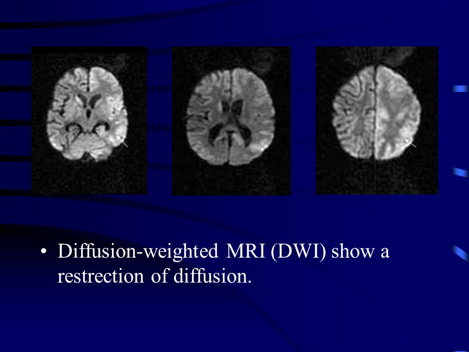 Diffusion-weighted MRI (DWI) show a restrection of diffusion.