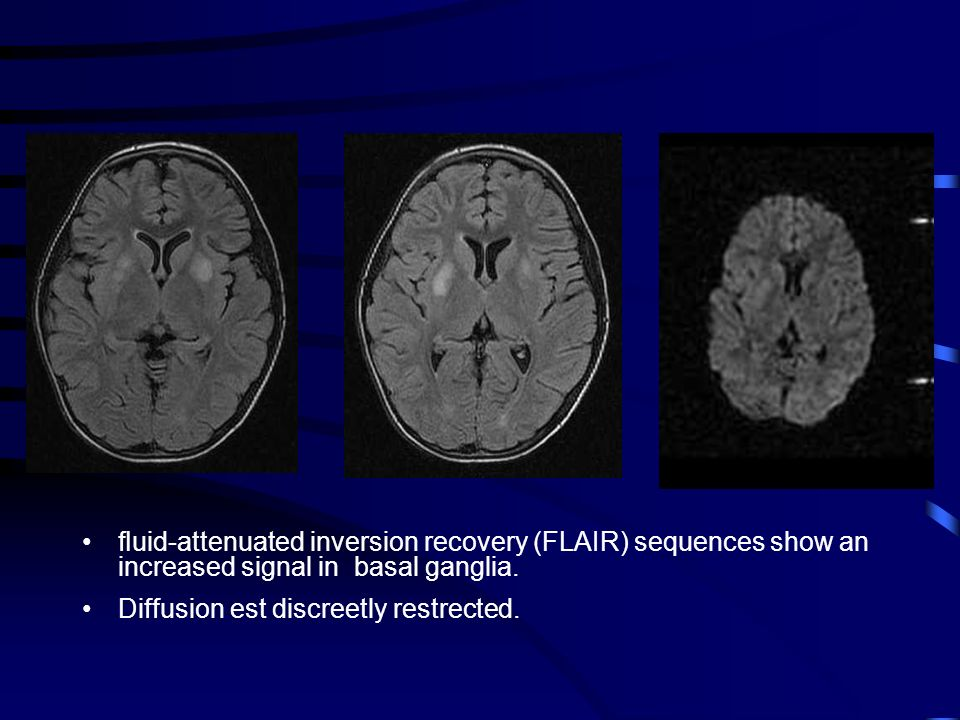 fluid-attenuated inversion recovery (FLAIR) sequences show an increased signal in basal ganglia.