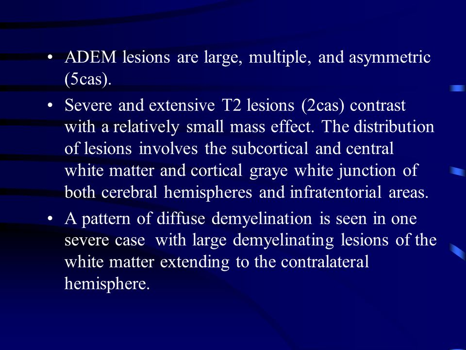 ADEM lesions are large, multiple, and asymmetric (5cas).