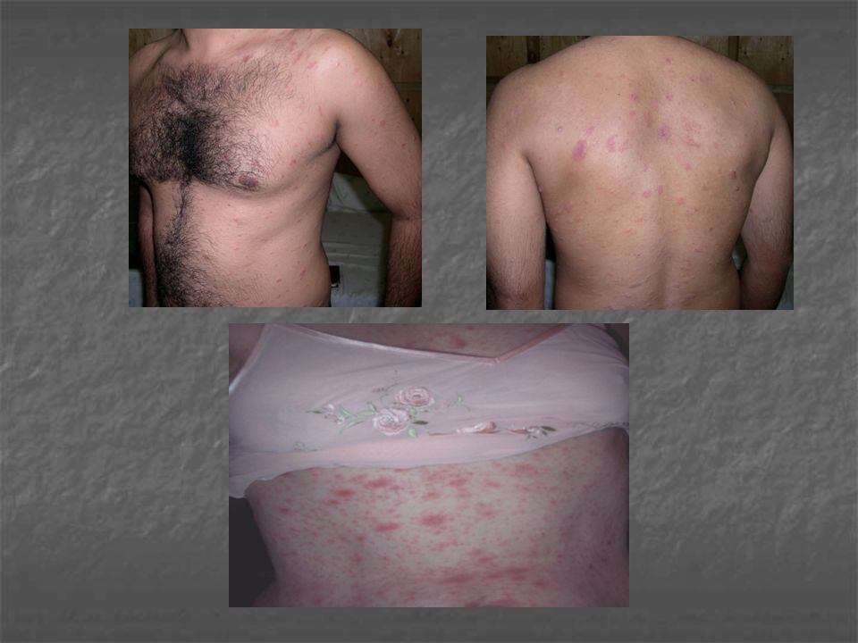 DD: Tinea circinata (by CP & scraping).Treatment 1.