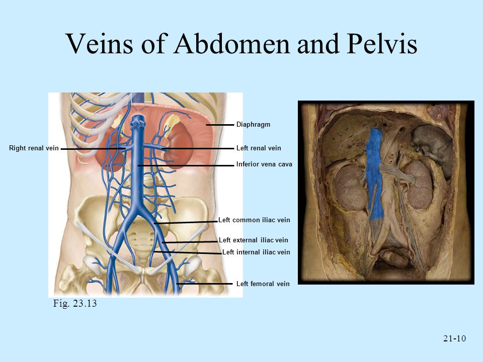 21-10 Veins of Abdomen and Pelvis Fig. 23.13 Right renal vein Left femoral vein Left internal iliac vein Left external iliac vein Left common iliac ve