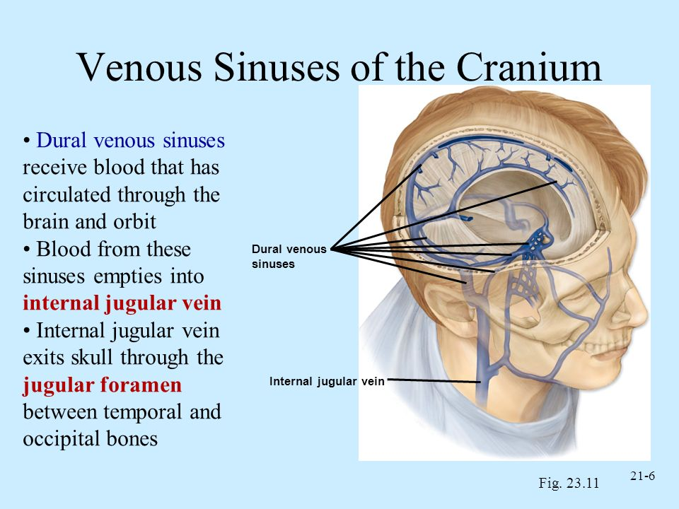21-6 Venous Sinuses of the Cranium Fig. 23.11 Dural venous sinuses receive blood that has circulated through the brain and orbit Blood from these sinu