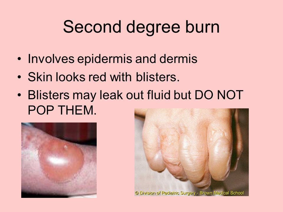Second degree burn Involves epidermis and dermis Skin looks red with blisters.