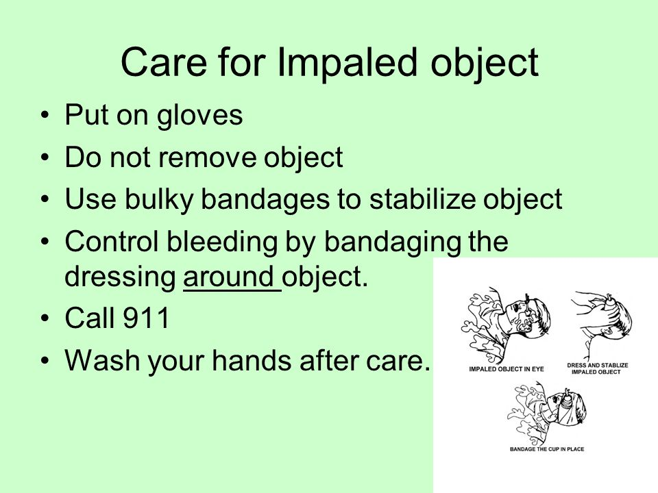Care for Impaled object Put on gloves Do not remove object Use bulky bandages to stabilize object Control bleeding by bandaging the dressing around object.