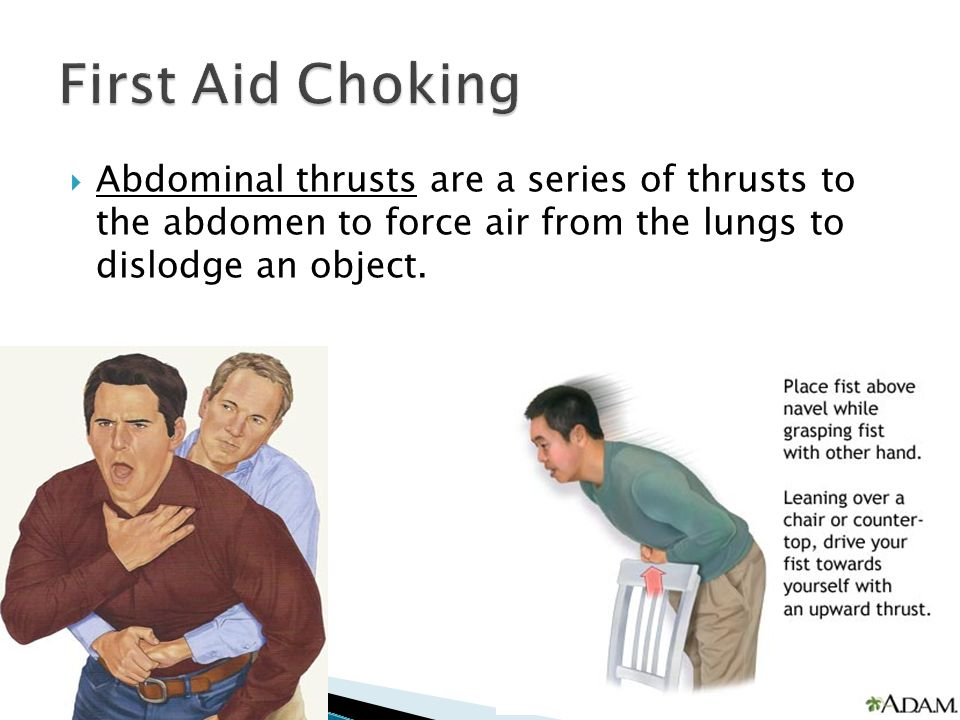  Abdominal thrusts are a series of thrusts to the abdomen to force air from the lungs to dislodge an object.
