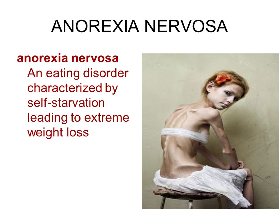 anorexia nervosa an eating disorder