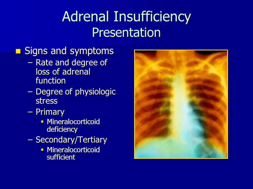 Adrenal Insufficiency Presentation Signs and symptoms Signs and symptoms –Rate and degree of loss of adrenal function –Degree of physiologic stress –Primary  Mineralocorticoid deficiency –Secondary/Tertiary  Mineralocorticoid sufficient