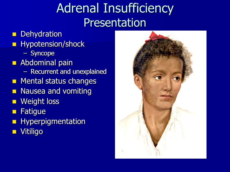 Adrenal Insufficiency Presentation Dehydration Dehydration Hypotension/shock Hypotension/shock –Syncope Abdominal pain Abdominal pain –Recurrent and unexplained Mental status changes Mental status changes Nausea and vomiting Nausea and vomiting Weight loss Weight loss Fatigue Fatigue Hyperpigmentation Hyperpigmentation Vitiligo Vitiligo