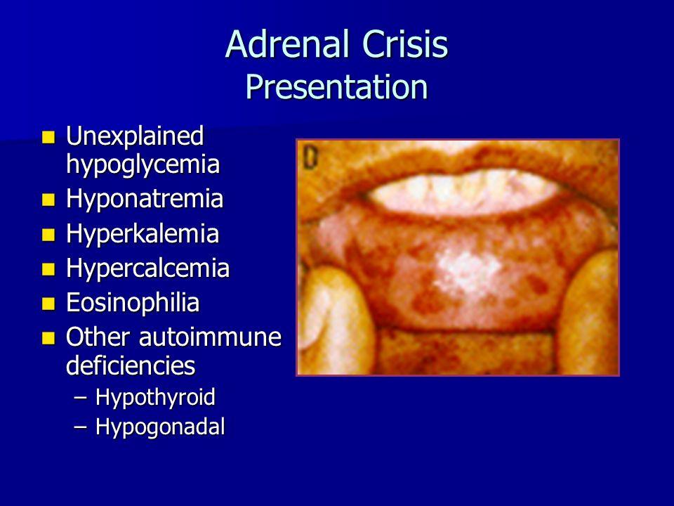 Adrenal Crisis Presentation Unexplained hypoglycemia Unexplained hypoglycemia Hyponatremia Hyponatremia Hyperkalemia Hyperkalemia Hypercalcemia Hypercalcemia Eosinophilia Eosinophilia Other autoimmune deficiencies Other autoimmune deficiencies –Hypothyroid –Hypogonadal