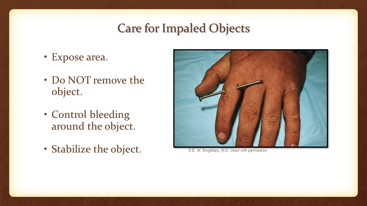 Care for Impaled Objects Expose area. Do NOT remove the object.