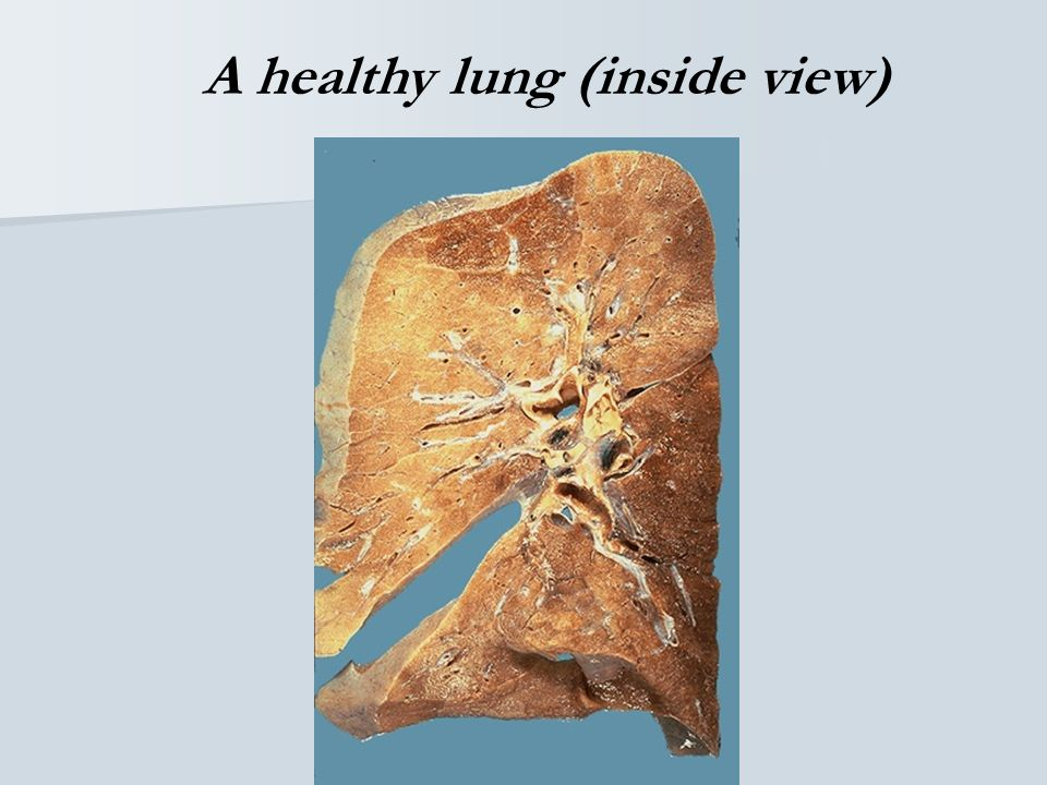 A Healthy Lung (outer view)