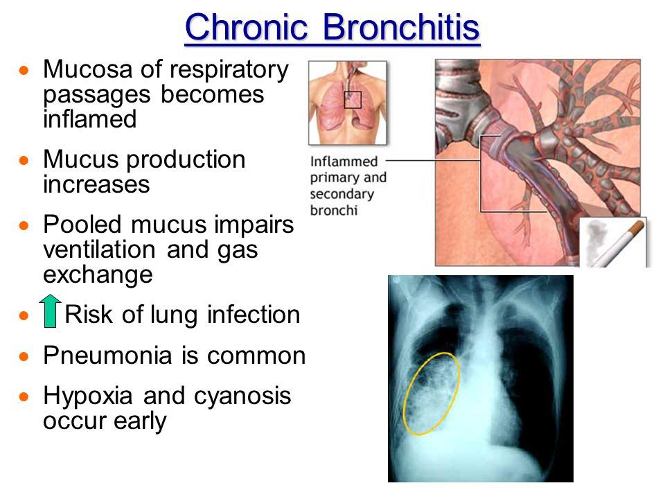Chronic Bronchitis  Mucosa of respiratory passages becomes inflamed  Mucus production increases  Pooled mucus impairs ventilation and gas exchange  Risk of lung infection  Pneumonia is common  Hypoxia and cyanosis occur early