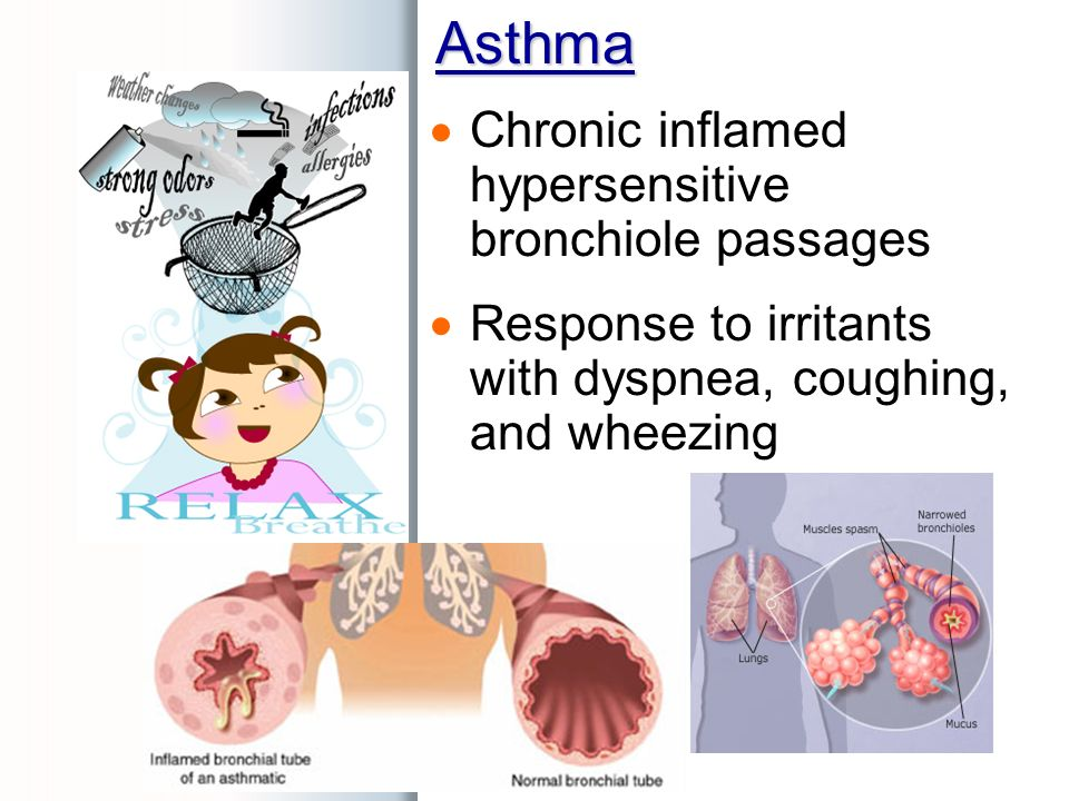 Asthma  Chronic inflamed hypersensitive bronchiole passages  Response to irritants with dyspnea, coughing, and wheezing