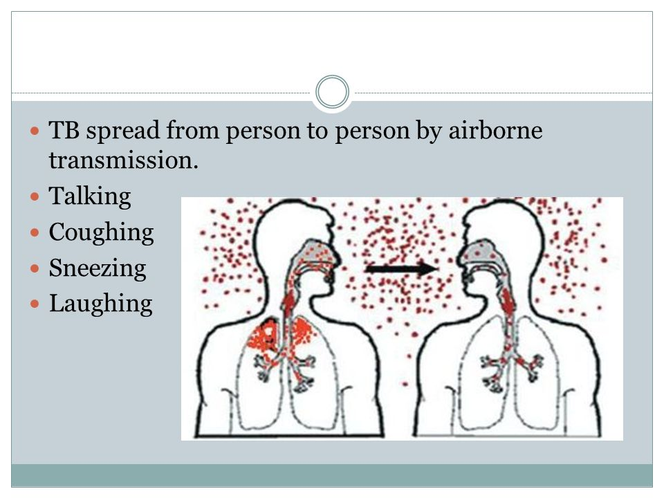 theme pulmonary tuberculosis essay kazakh national medical 5 tb sp from person to person by airborne transmission talking coughing sneezing laughing