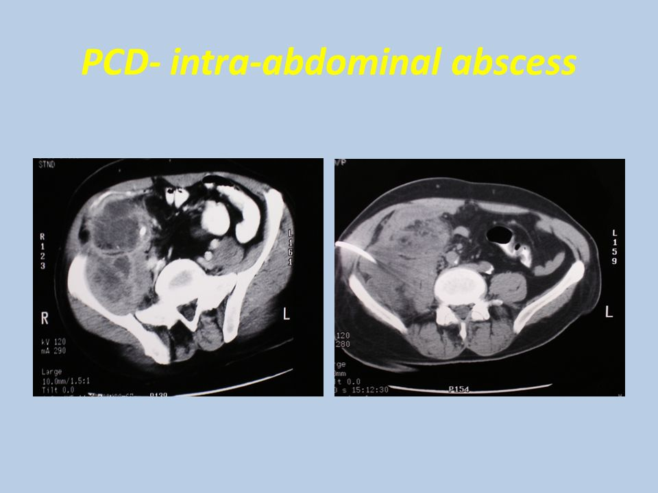 PCD- intra-abdominal abscess