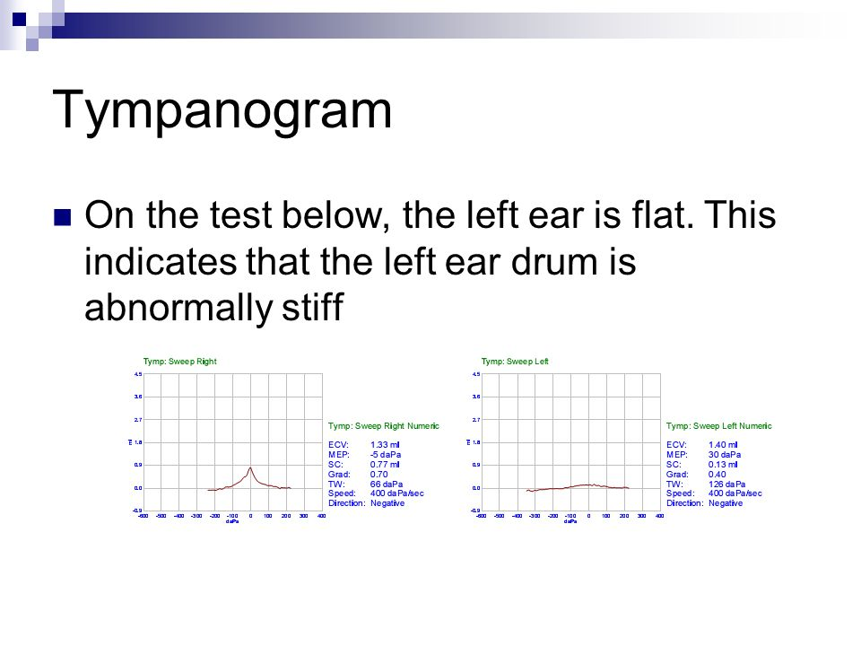 Tympanogram On the test below, the left ear is flat.