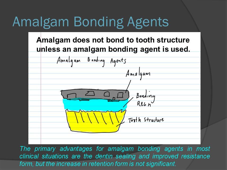 Amalgam Bonding Agents Amalgam does not bond to tooth structure unless an amalgam bonding agent is used.