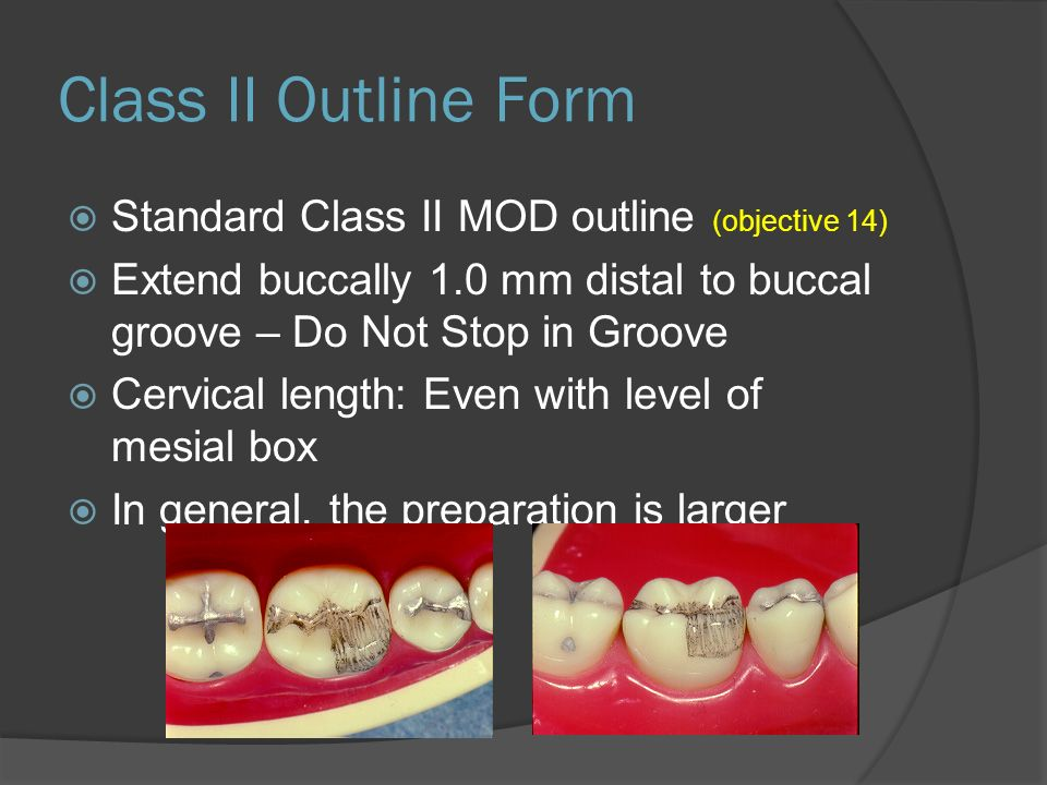 Class II Outline Form  Standard Class II MOD outline (objective 14)  Extend buccally 1.0 mm distal to buccal groove – Do Not Stop in Groove  Cervical length: Even with level of mesial box  In general, the preparation is larger