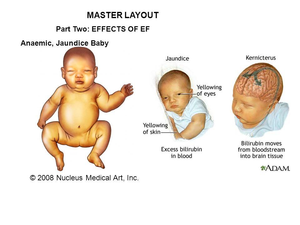 erythroblastosis fetalis supriya saraswati a potentially life, Skeleton