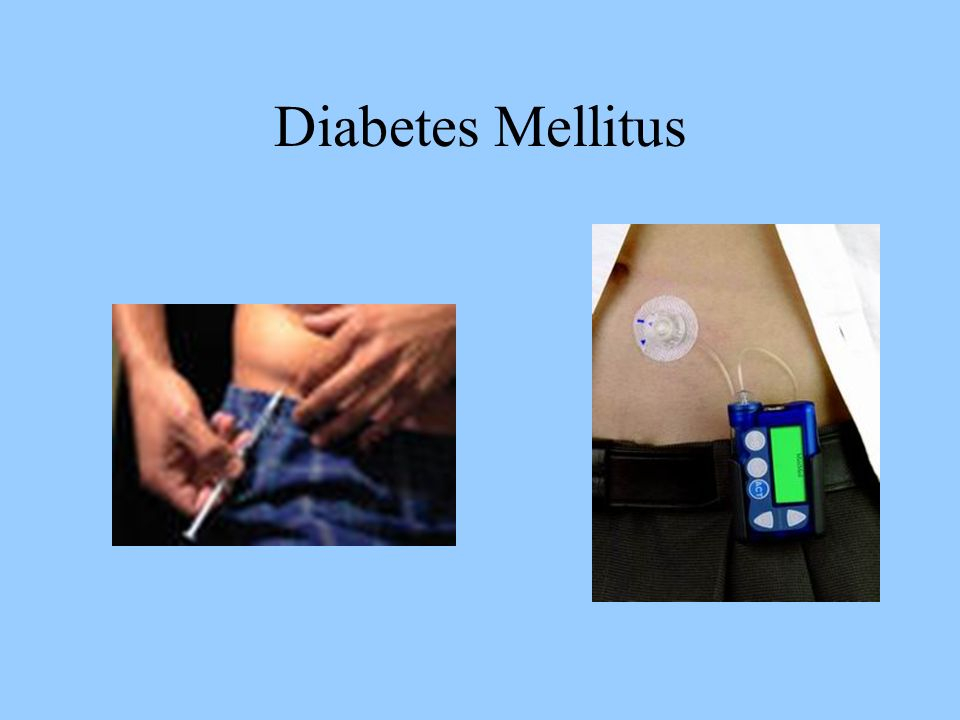 Diabetes Mellitus Lack of insulin Cells are starving; cannot get glucose into the cell without insulin, thus weight loss is a symptom Kidneys try to get rid of excess sugar, increasing urine output and thirst