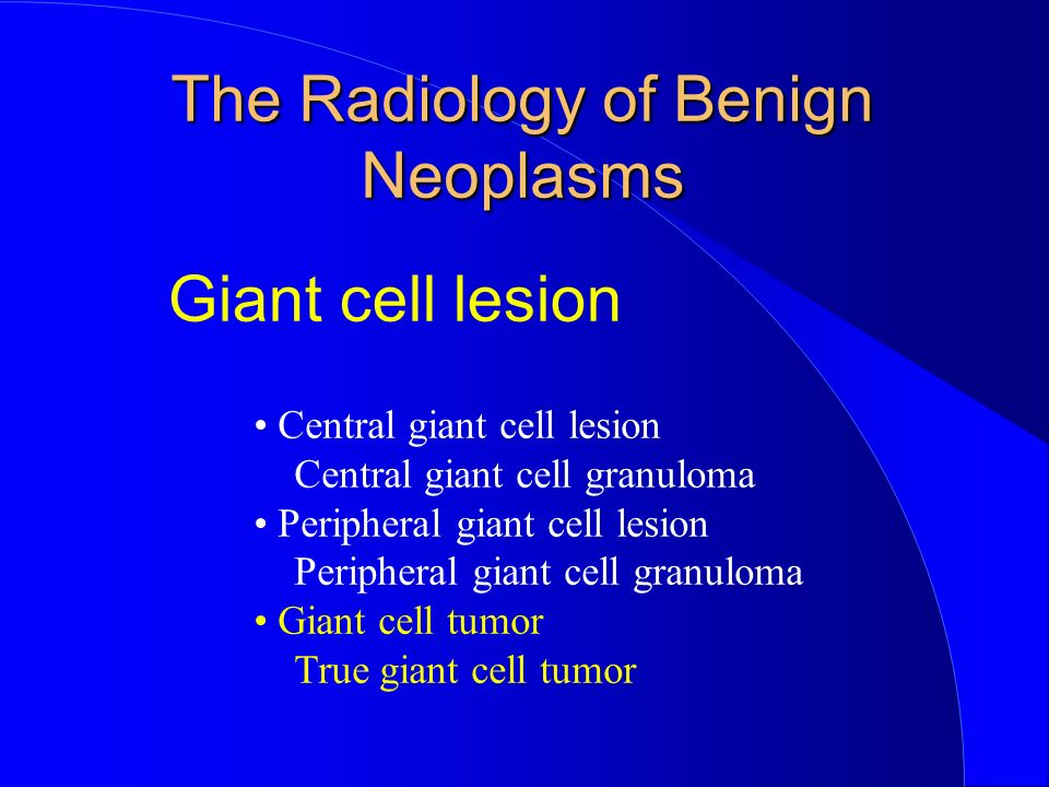 Giant cell lesion Central giant cell lesion Central giant cell granuloma Peripheral giant cell lesion Peripheral giant cell granuloma Giant cell tumor True giant cell tumor The Radiology of Benign Neoplasms