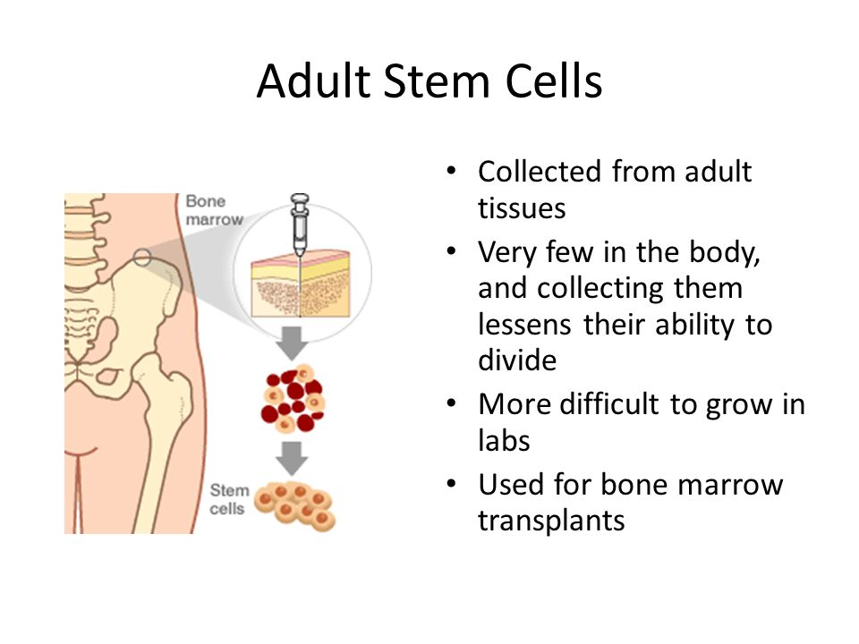 Adult Stem Cells Collected from adult tissues Very few in the body, and collecting them lessens their ability to divide More difficult to grow in labs Used for bone marrow transplants