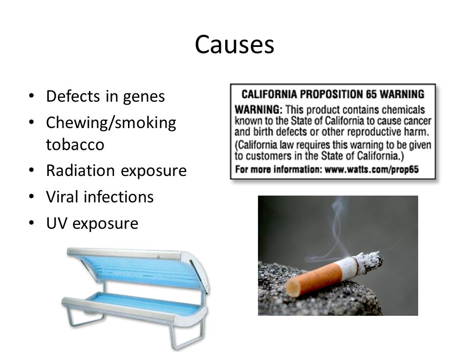 Causes Defects in genes Chewing/smoking tobacco Radiation exposure Viral infections UV exposure