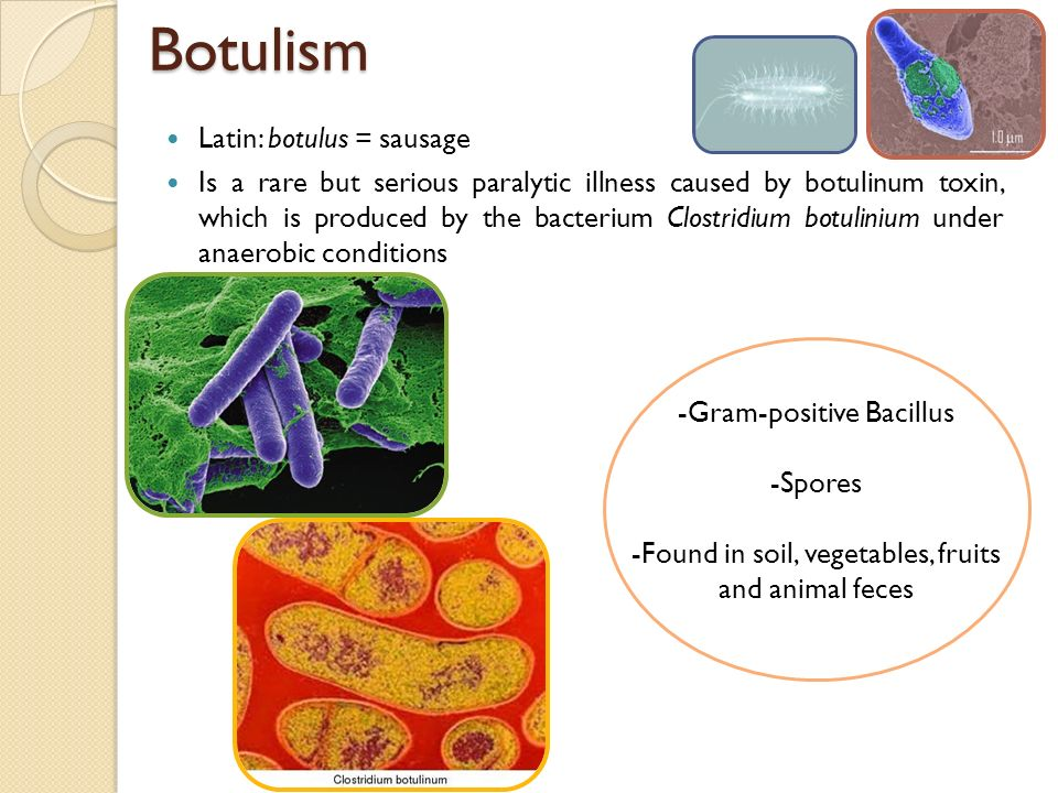 botulism or sausage poisoning essay Botulism is a rare but serious paralytic disease in dogs  blood will also be taken to test for the botulinum toxin in the serum likewise.