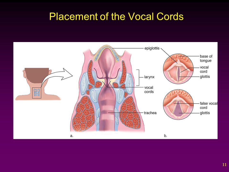 11 Placement of the Vocal Cords