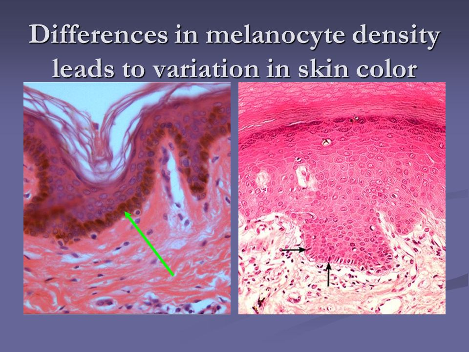 Differences in melanocyte density leads to variation in skin color