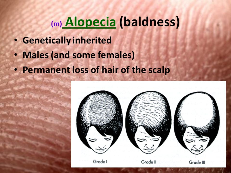 (m) Alopecia (baldness) Genetically inherited Males (and some females) Permanent loss of hair of the scalp