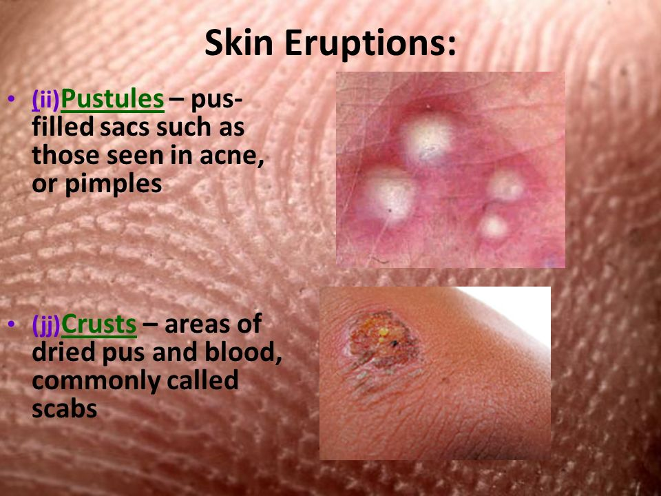 Skin Eruptions: (ii) Pustules – pus- filled sacs such as those seen in acne, or pimples (jj) Crusts – areas of dried pus and blood, commonly called scabs